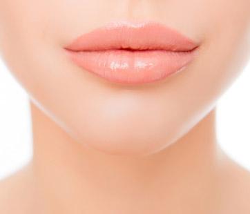 Lip-Filler-Perth-What-Are-Lip-Fillers-1